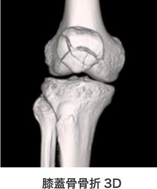 腰椎圧迫骨折3D